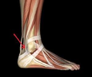 140712084858peroneal tendon